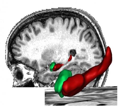 alzheimer_cerveau hippocampe15042010
