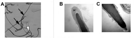 fig.-a-b-c-spermatozoïdes 27avr10