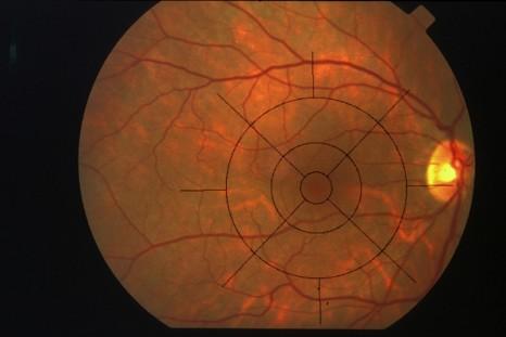 Fond d'oeil rétine normale