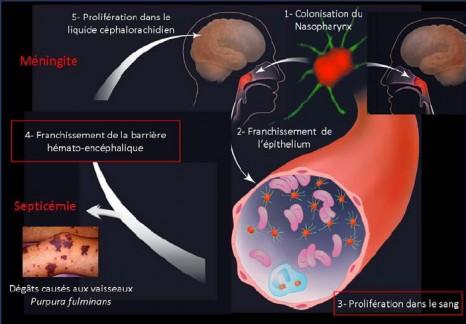 cp_meningocoque1