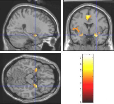 perception-olfactive-2