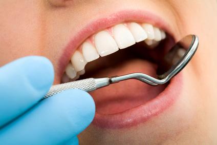 bouche dents gencives