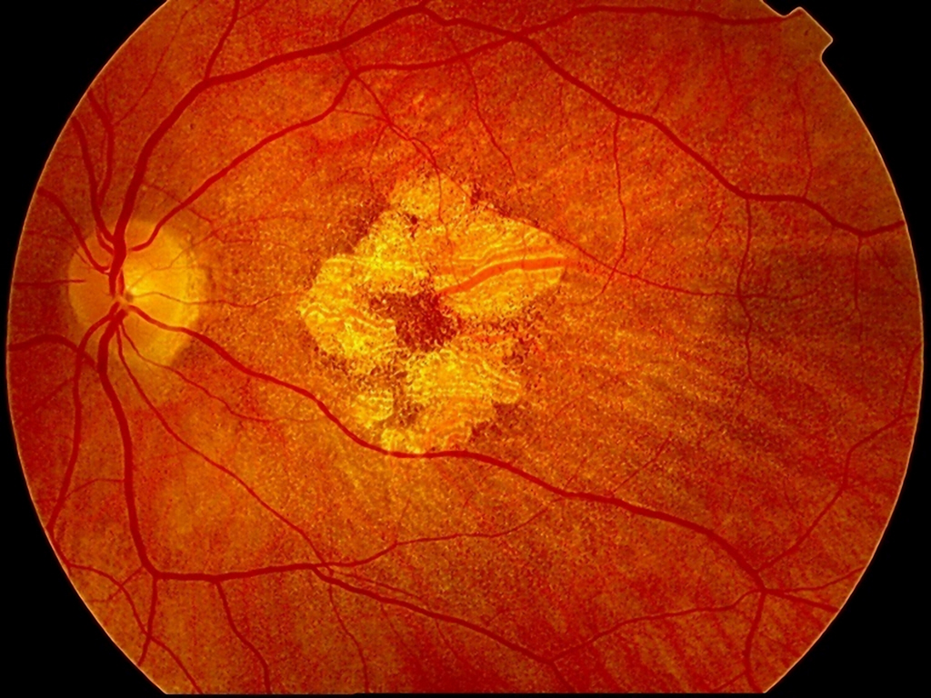 New Genetic Risk Factor For Developing >> Seven Genetic Risk Factors Associated With Amd Newsroom Inserm