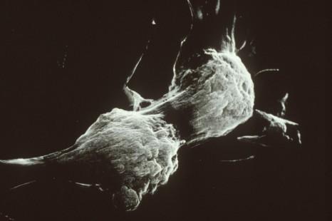 Cellule infectée (située en arrière plan) par le virus HIV responsable du SIDA en train de fusionner avec une cellule non infectée qui le devient alors.