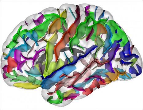 Etude des structures cérébrales de sujets sains ou pathologiques