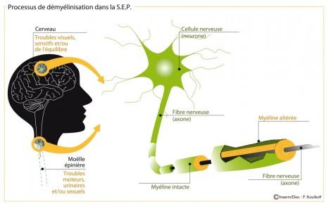 Schéma fonctionnement sclérose en plaques