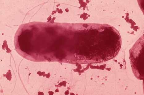 bacterie e.coli