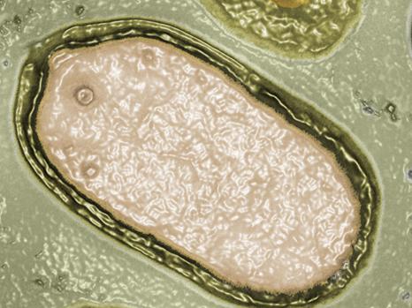 Pandoravirus salinus observé par microscopie électronique © IGS CNRS-AMU