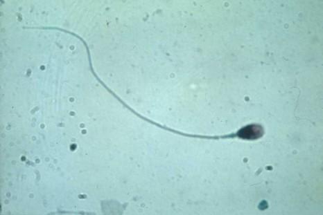 Spermatozoide-khochbin
