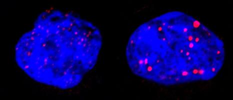 2_cellules