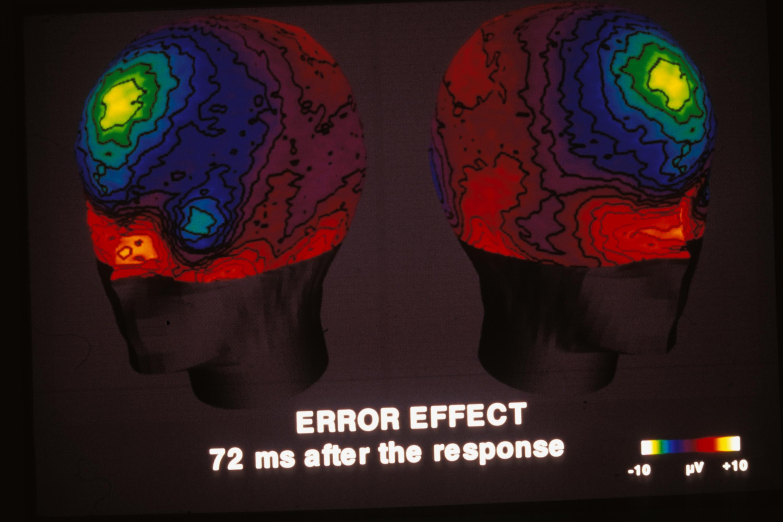 identification du r seau neuronal contr lant nos actions. Black Bedroom Furniture Sets. Home Design Ideas