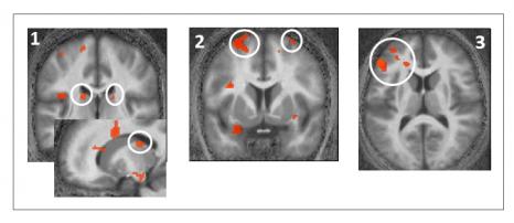 image IRM