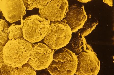 Lymphocytes en amas