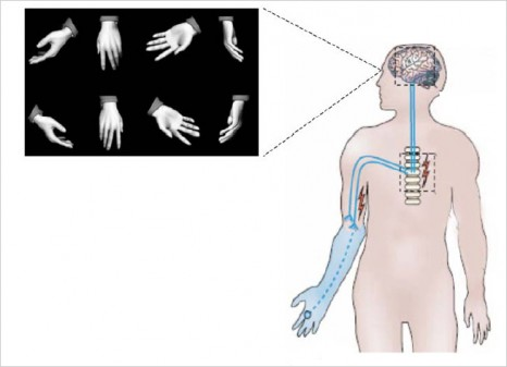 cp-anesthesie-15-janv-2011