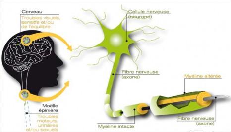demyelinisation-sep