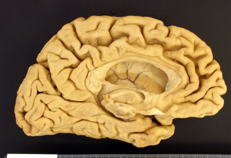 Etude de la maladie d'Alzheimer