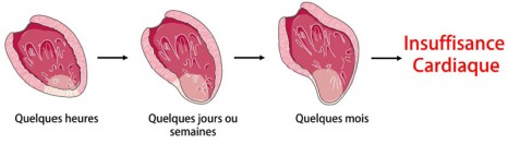 fig1_pinet Coeur insuffisance cardiaque
