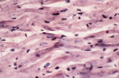 inserm_3727-fibres-myocardiques
