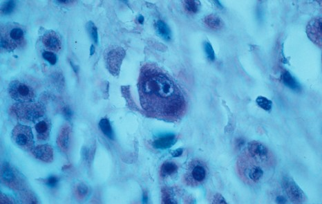 lymphocytopenie cytomégalovirus
