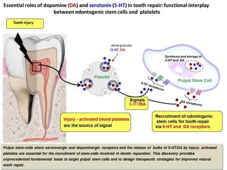 schéma mécanisme dent EN