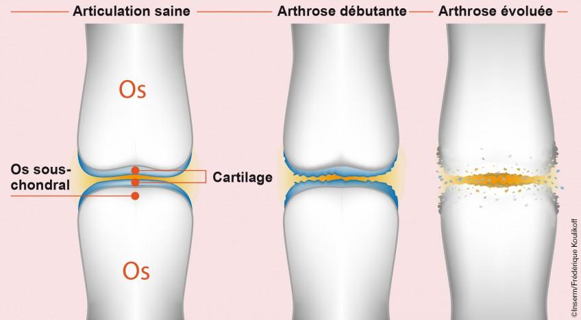 arthrose-V2