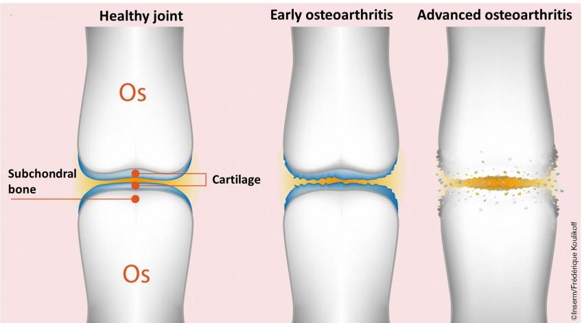arthrose eng