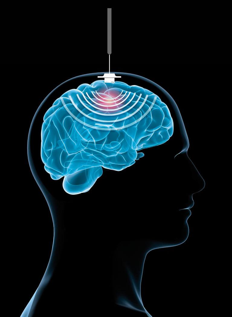 cerveau-ultrasons