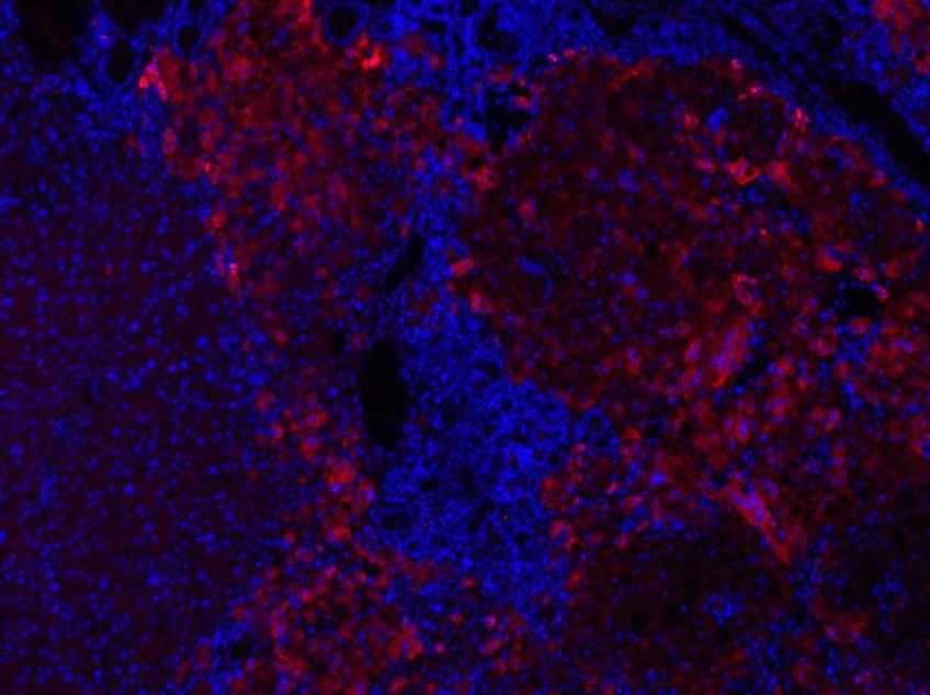 """Etude de l'hépatite C chez la souris """"chimérique"""""""