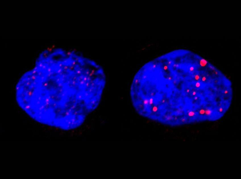 Etude de la leucémie aigüe promyélocytaire