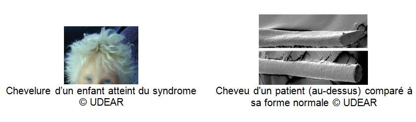 visuels-cheveu-patient