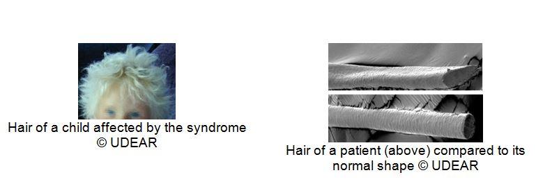 uncombable-hair