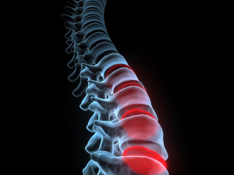 Un traitement innovant contre les douleurs chroniques — Mal de dos