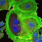 Photo d'imagerie en microscopie électronique montrant la transformation des cellules mammaires tumorales dans le cancer du sein