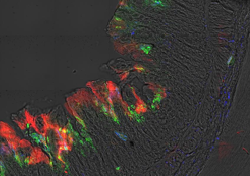 Imagerie montrant la déplétion de l'oxygène au sein de la muqueuse intestinale par Shigella (vert), induisant une hypoxie (rouge) au sein des foyers infectieux inflammatoires (neutrophiles: marqués à l'aide du Myelotracker, bleu).