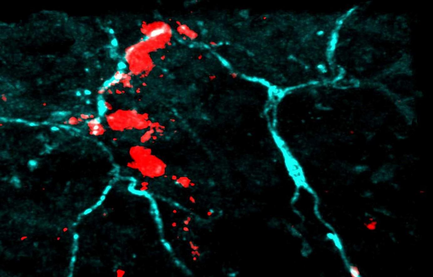 Eczéma atopique : les allergènes jouent avec nos nerfs