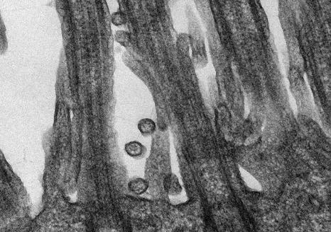 Image de microscopie du Coronavirus SARS-CoV-2 responsables de la maladie COVID-19 accrochés aux cellules épithéliales respiratoires humaines