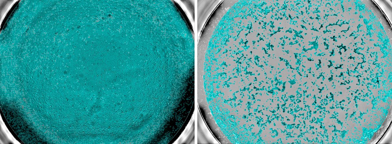 Echantillons sanguins dans la cohorte Constances et tests sérologiques de l'infection au virus SARS-Cov-2  Crédits :   ©Unité des Virus Émergents (Inserm - Aix Marseille Université - IRD)  Image « UVE Séroneutralisation cellules » :  des cellules non infectées par le virus SARS-CoV-2, preuve que l'échantillon de sang contenait des anticorps neutralisants capable d'empêcher le virus d'entrer dans les cellules.   Image « UVE Séroneutralisation cellules infectées » : de nombreuses cellules ont été détruites, preuve de l'absence d'anticorps neutralisants contre le virus.