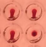 test sérologique Covid-19