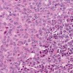 Hepatoblastome