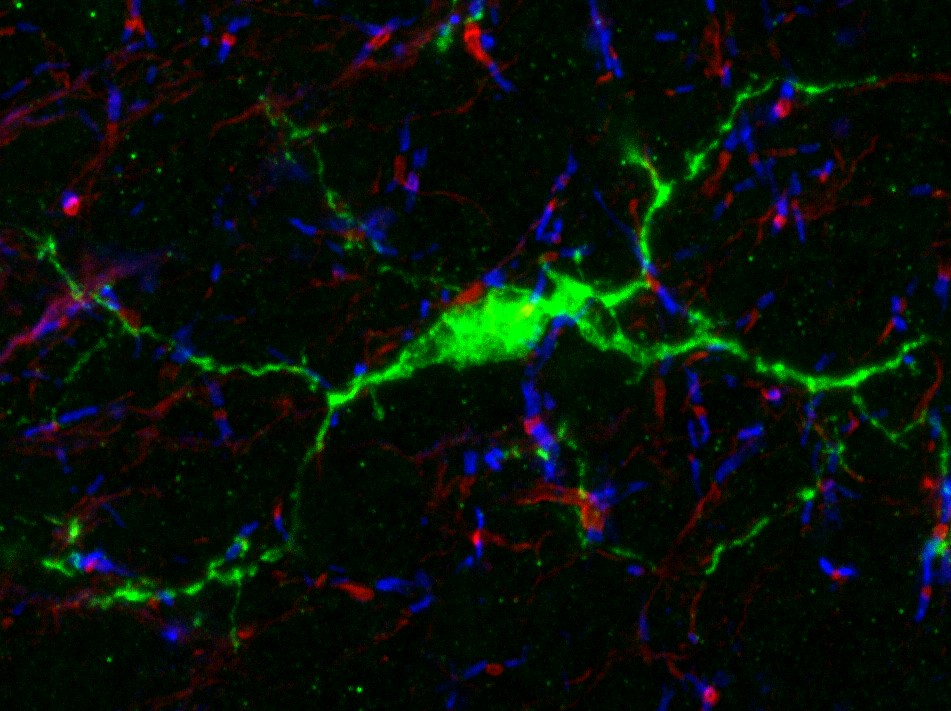 Cellule microgliale